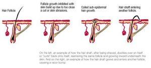 Diagram Illustrates Ingrown Hairs