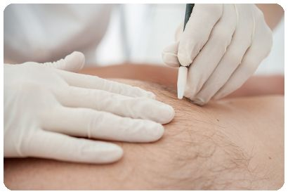 Australian Electrolysis Clinics Sydney NSW Australia Proven Guaranteed Effective Best Method Treatments Permanently Remove Unwanted Hair Hairs Removal Face Body Chest Back Legs Arms Men Women Gay Trans Transgender Friendly Clients Customers