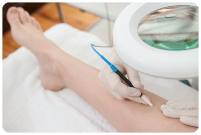 Proven Safe Effective Permanent Hair Removal Treatments Australian Sydney Electrolysis Clinics Photos Methods to Reduce Remove Unwanted Face & Body Hair Treat Women Men Trans Transgender Friendly Clients Australia