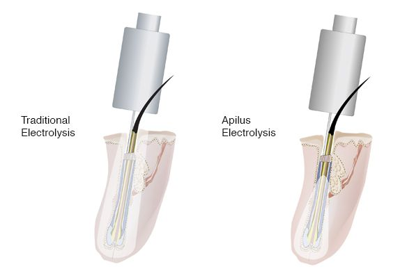 Diagram Compare Traditional Apilus Machine Electrolysis Best Safe Effective Proven Permanence Permanent Guaranteed Method Treatment Remove Hair Hairs Body Face Best Australian Sydney Clinics Clinic Trans Friendly Transgender Clients Customers