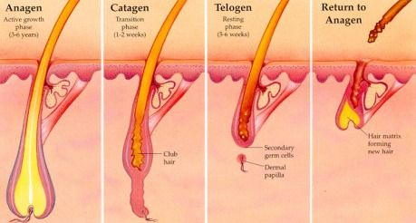 Diagram Dormant Active Hair Growth Cycles Regards Treatments Permanently Remove Unwanted Hairs Anagen Catagen Telogen Phases Sydney Suburbs Summer Dulwich Hill Croydon Petersham St Peters Marrickville Lewisham Redfern Waterloo Eveleigh Darlington